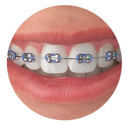 Metal Braces Smile - Iszkula Orthodontics Erie, PA