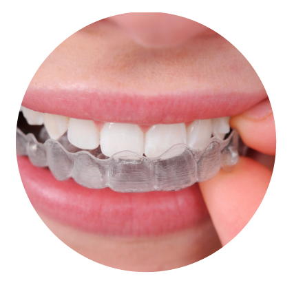 Invisalign Clear Aligners - Erie, PA