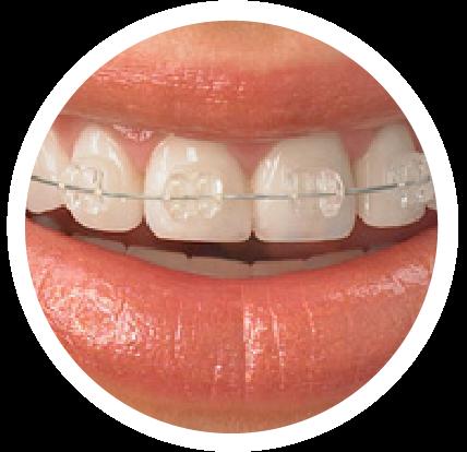 Clear Ceramic Braces Smile - Iszkula Orthodontics Erie, PA