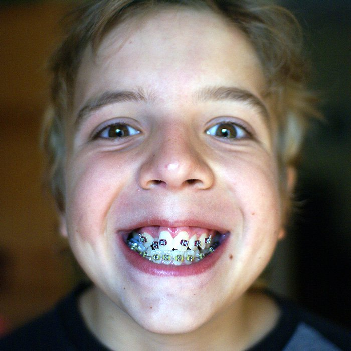 Tips For Keeping Your Braces Clean
