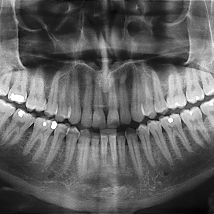 Dental X-Rays:It's Time for your Close Up