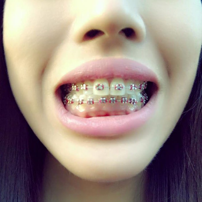 How Do Braces Actually Straighten Teeth?